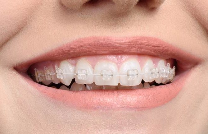 Information on transparent white dental braces